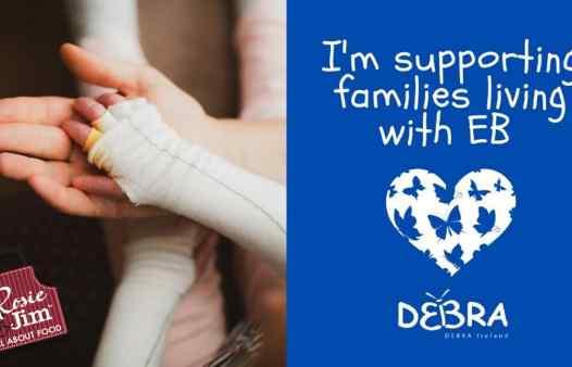 Rosie & Jim donate €2000 to Debra fundraiser